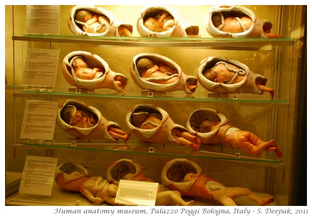 Babies in mothers womb, Palazzo Poggi, Bologna, Italy - S. Deepak, 2011
